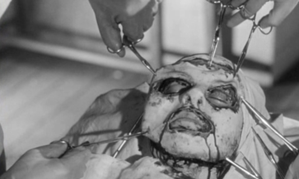 The Return of the French: Eyes Without A Face (1960) (4/5)