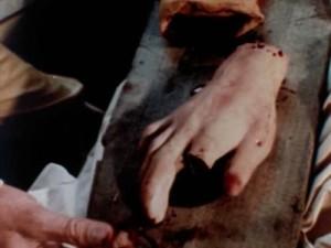 The heartbreak of nailess Milligan hand.